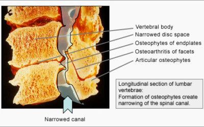 Stenosi vertebrale: meglio la riabilitazione del bisturi