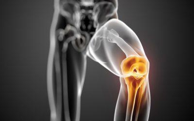 Lesione al menisco: ecco come la fisioterapia può aiutarti