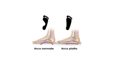 I piedi piatti nei bambini: quando l'intervento è evitabile?