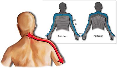 brachialgia