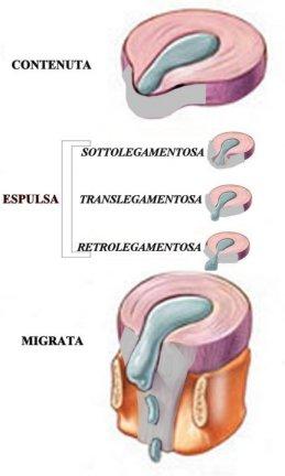 Cura Ernia del Disco Lombare