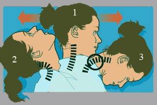 Curare il Colpo di frusta trieste