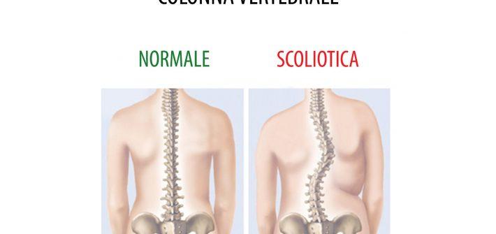 Cura Scoliosi Gravi : Trattamenti per Scoliosi a Trieste