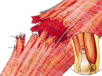 lesione-retto-del-femore